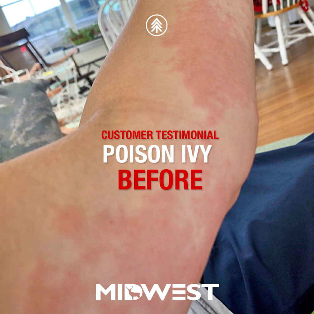 what does steroid do for poison ivy